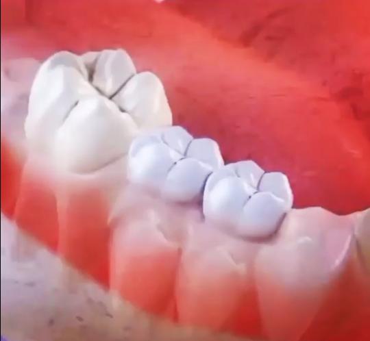 Diş tedavisi Elazığ